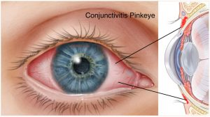 Conjunctivitis, pinkeye, treated at Fort Worth Eye Asociates