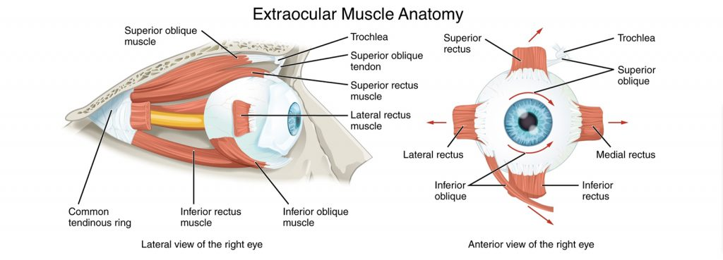 Strabismus surgery, extraocular eye muscles within the orbit