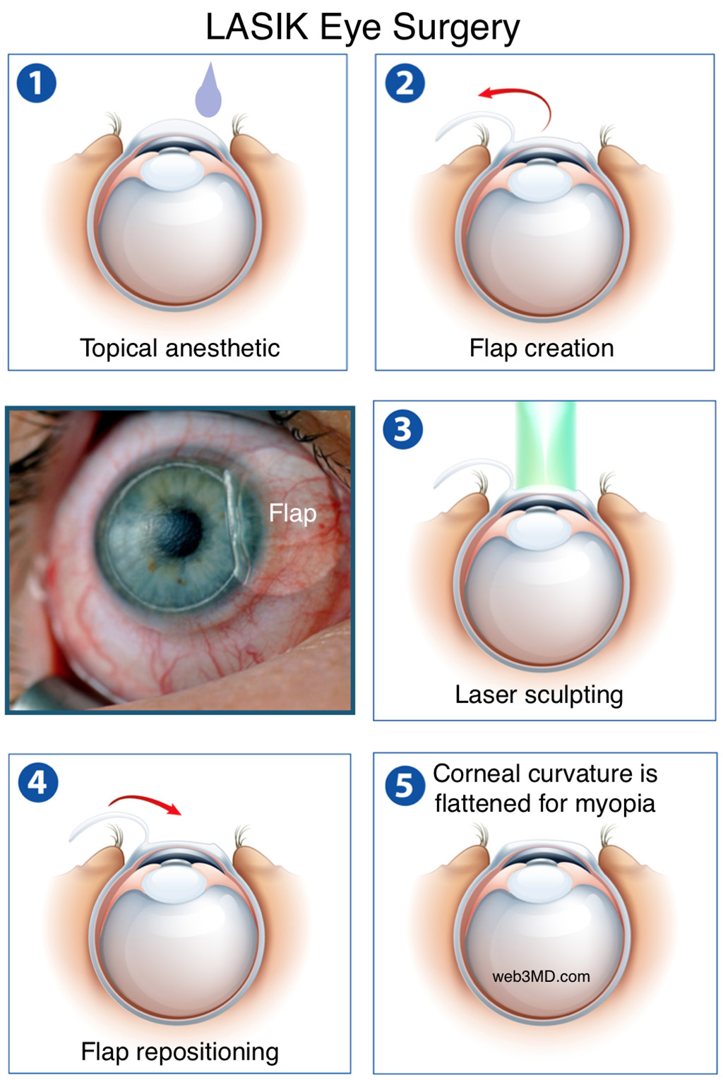 the pros and cons of lasik a type of laser eye surgery What are the pros and cons of prk, lasik  is the next generation in laser vision correction most of the cons of are pros and cons of a lasik eye surgery.