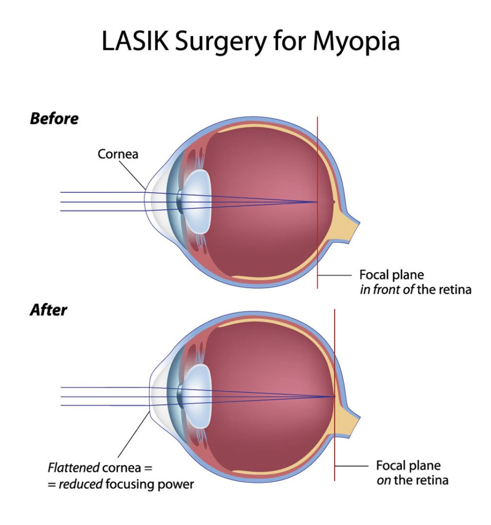 LASIK eye surgery corrects nearsighted vision (myopia)