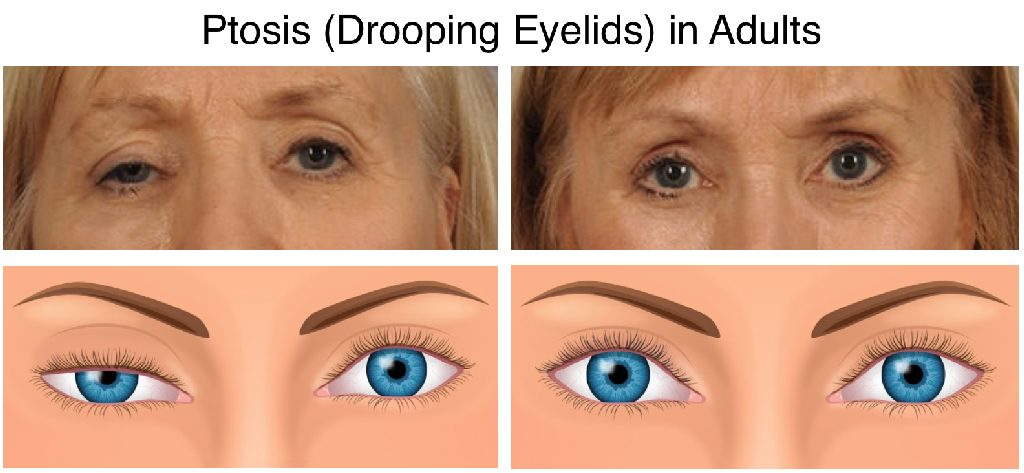 Ptosis (Drooping Eyelids) in Adults
