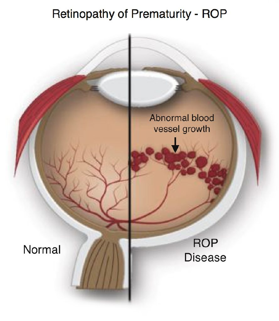 Retinopathy of prematurity (ROP) treated by Dr Ranelle