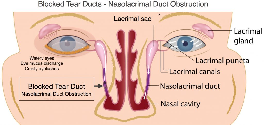 Blocked tear ducts, Nasolacrimal duct obstruction