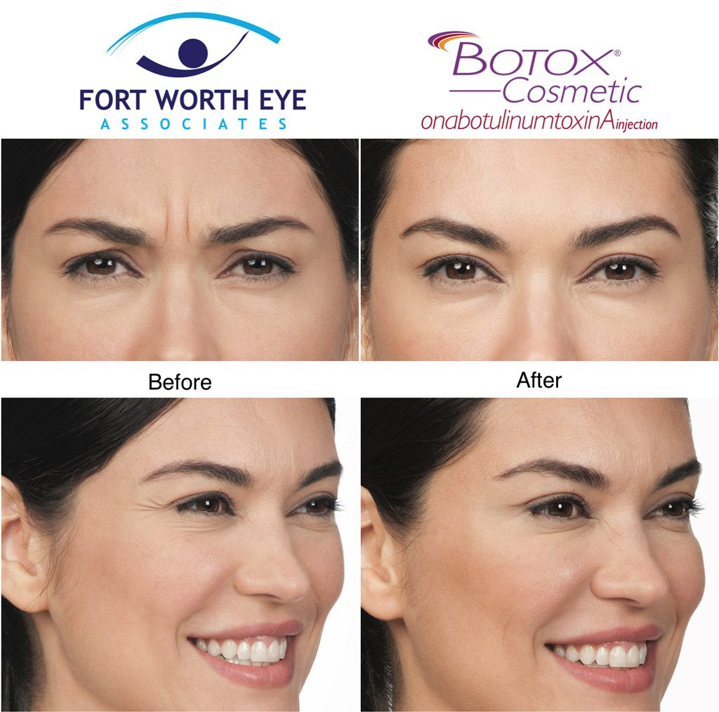 Nonsurgical Facial Cosmetic Procedures Botox cosmetic