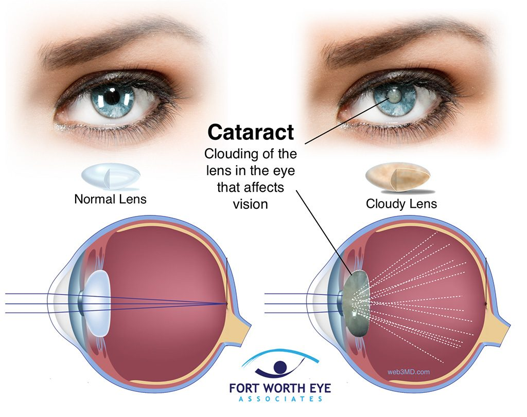 Cataract surgery extract cataract