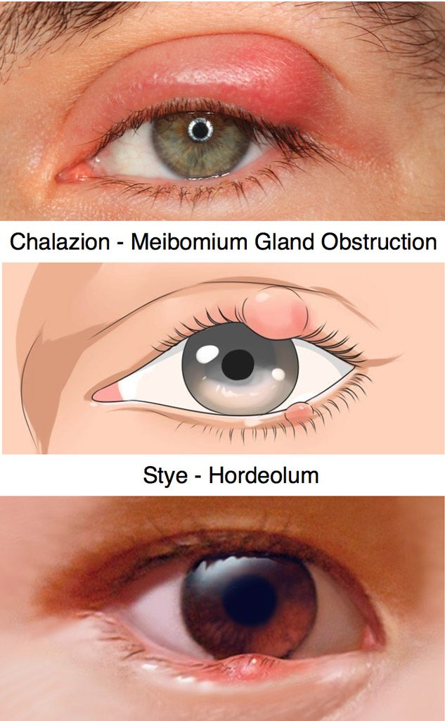 Chalazion and stye (hordeolum) are infections of the edge of the eyelid.