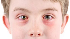 Conjunctivitis Pinkeye Fort Worth Eye