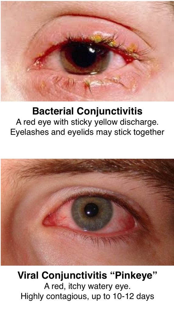 conjunctivitis causes and cures Conjunctivitis refers to the inflammation of the moist tissues in the front part of a cat's eye learn more about the causes, symptoms and treatment of conjunctivitis.