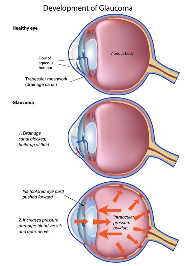 glaucoma vision loss blindness