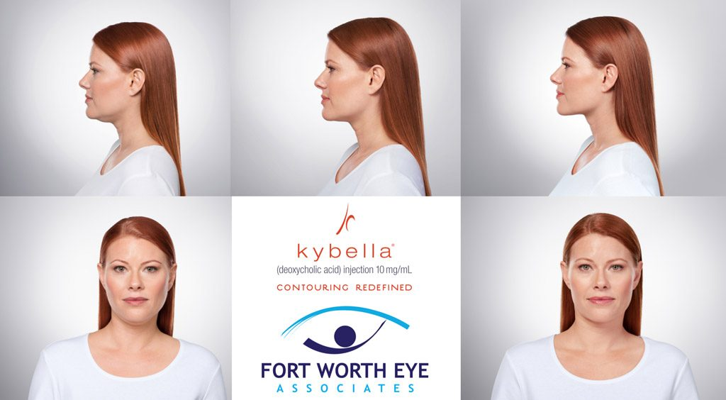 Nonsurgical Facial Cosmetic Procedures kybella chin fat reduction