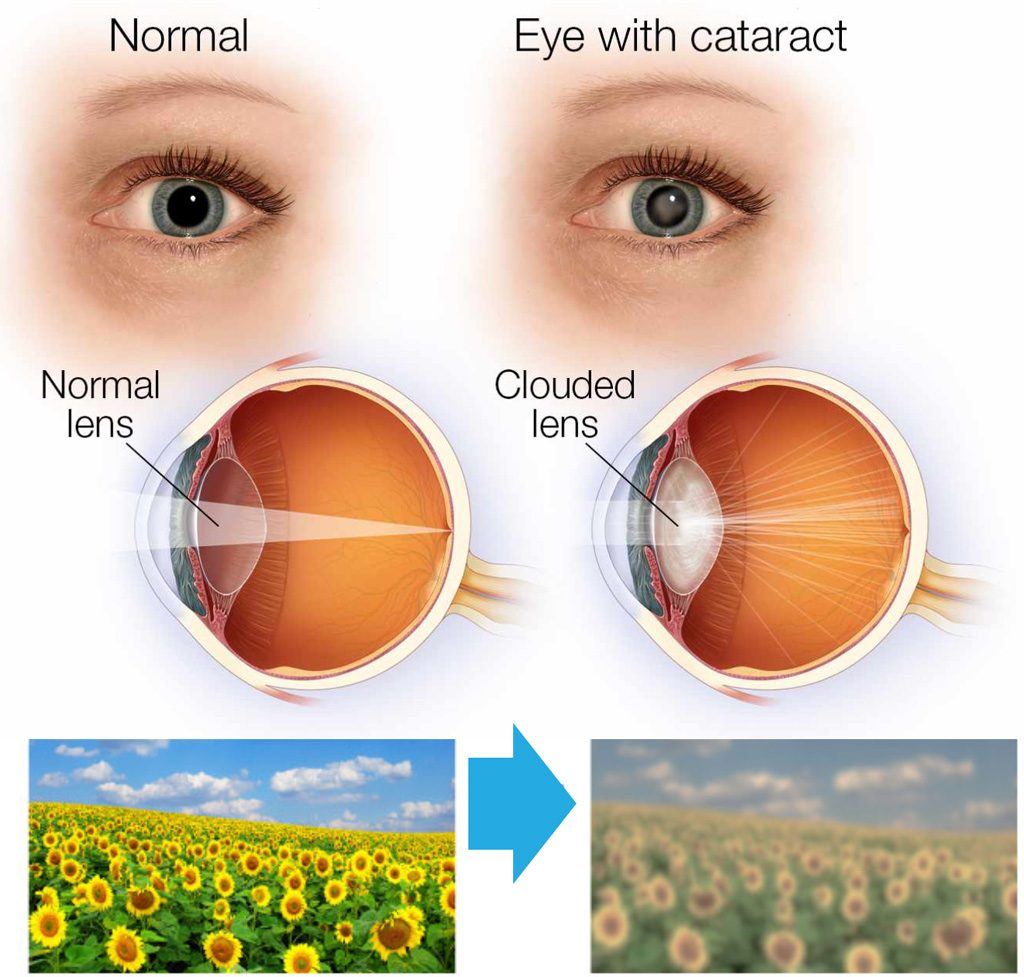 Cataract Surgery FAQs – Frequently Asked Questions  Fort Worth Eye Associates