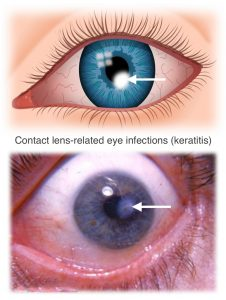 contact lens-related eye infections are corneal infections (keratitis)