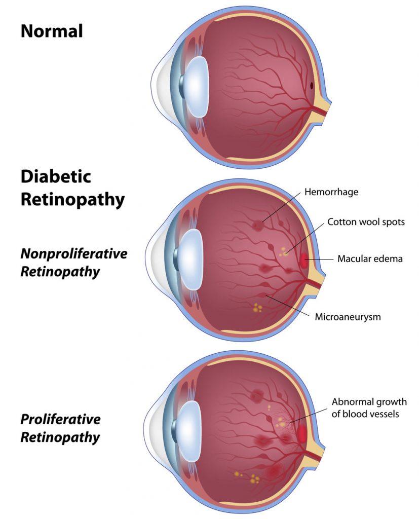Adult Ophthalmology FW Eye