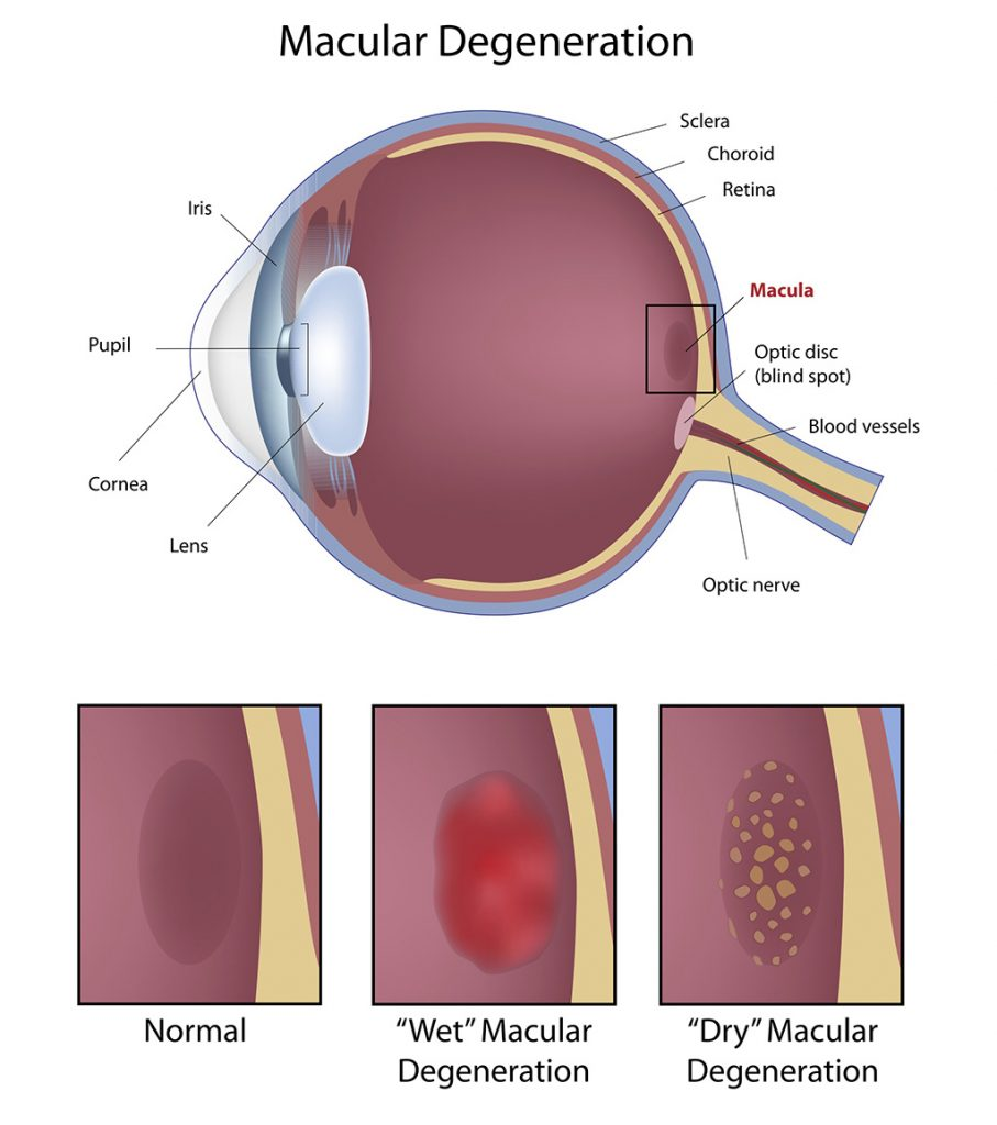 adult ophthalmology treatment at Fort Worth Eye Associates
