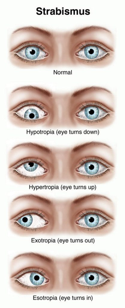 adult ophthalmology strabismus fort worth eye associates