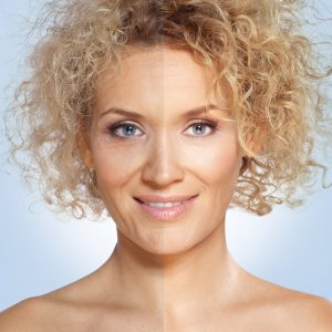 nonsurgical facial cosmetic procedures