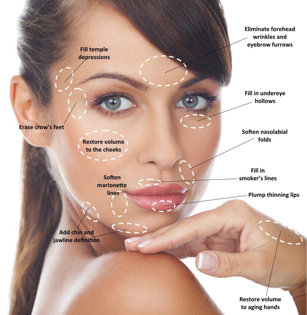 Dermal filler restores facial smoothness and volume by Dr Ann Ranelle