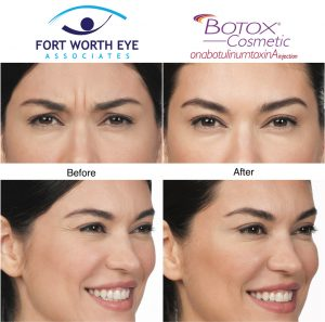 injectables dermal fillers Botox for wrinkles